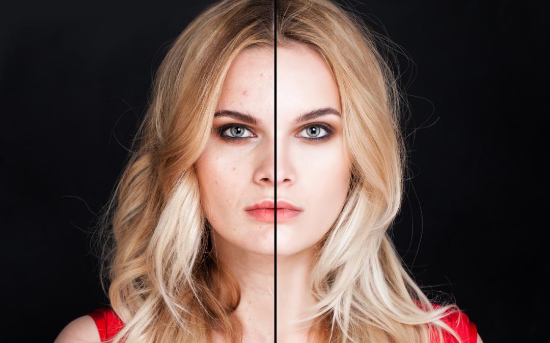 ¡Elimina tus marcas del acné ya!